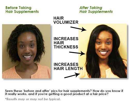 before after hair supplements